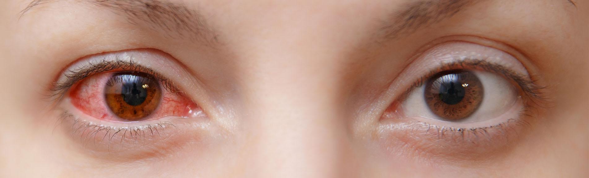 Conjunctivitis Pink Eye Symptoms
